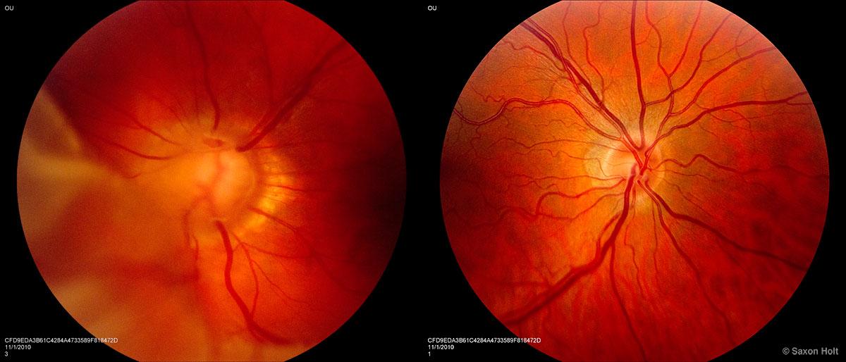 eyeball scans